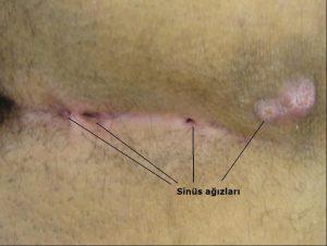 Pilonidal sinüsün dışardan görünümü (Kaynak: Prof.Dr. Osman DOĞRU kişisel arşivi)
