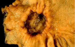 Midede kanserin endoskopik görünümü