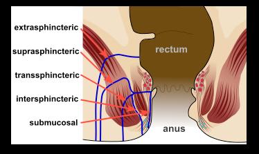 anal-fistul3